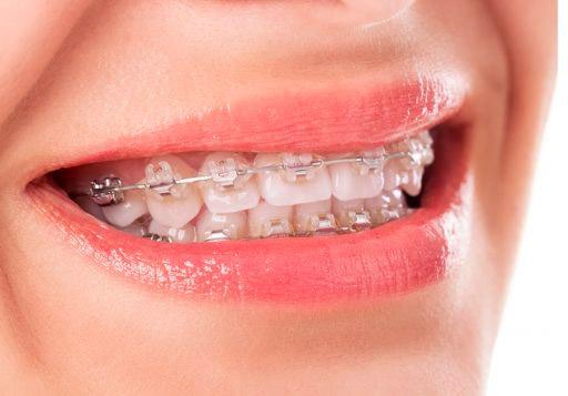 Instituto Kopp - Clínica odontológica - Endodontia - Aparelho ortodôntico