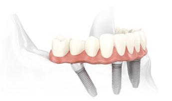 All-on-4 - Instituto Kopp - clínica odontológica em Curitiba