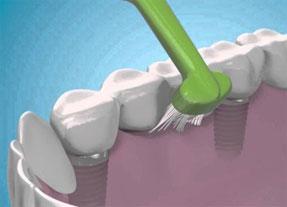 All in 4 - Instituto Kopp - clínica odontológica em Curitiba