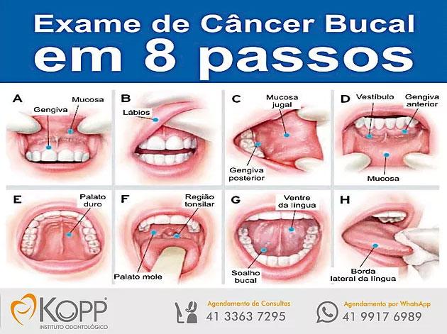 cancer bucal como prevenir