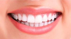 Clareamento de dentes