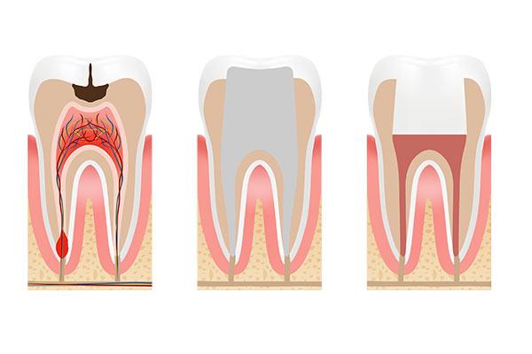 Instituto Kopp - Clínica odontológica - Endodontia - Tratamento de Canal