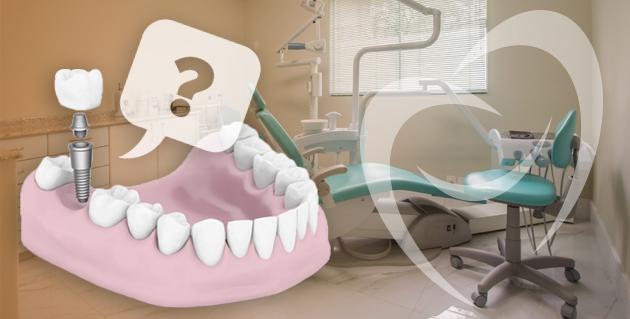 tipo de implante dentário