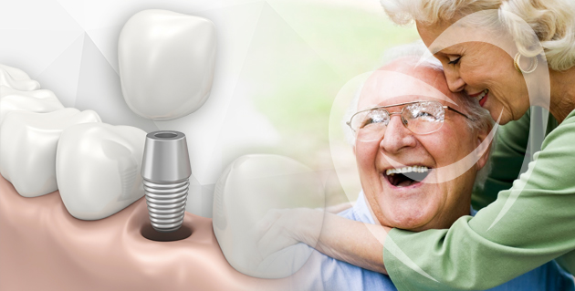 implante com carga imediata