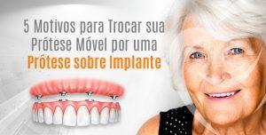 implantes-dentários