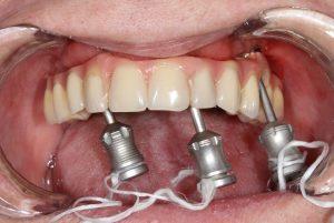 Implante-mal-planejado