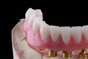 Instituto Kopp: prótese dentária em Curitiba