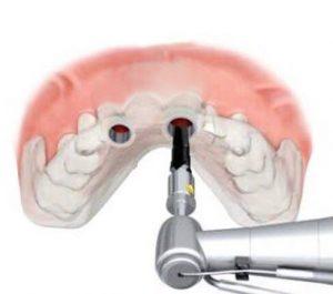 Instituto Kopp: cirurgia guiada de implante dentário em curitiba