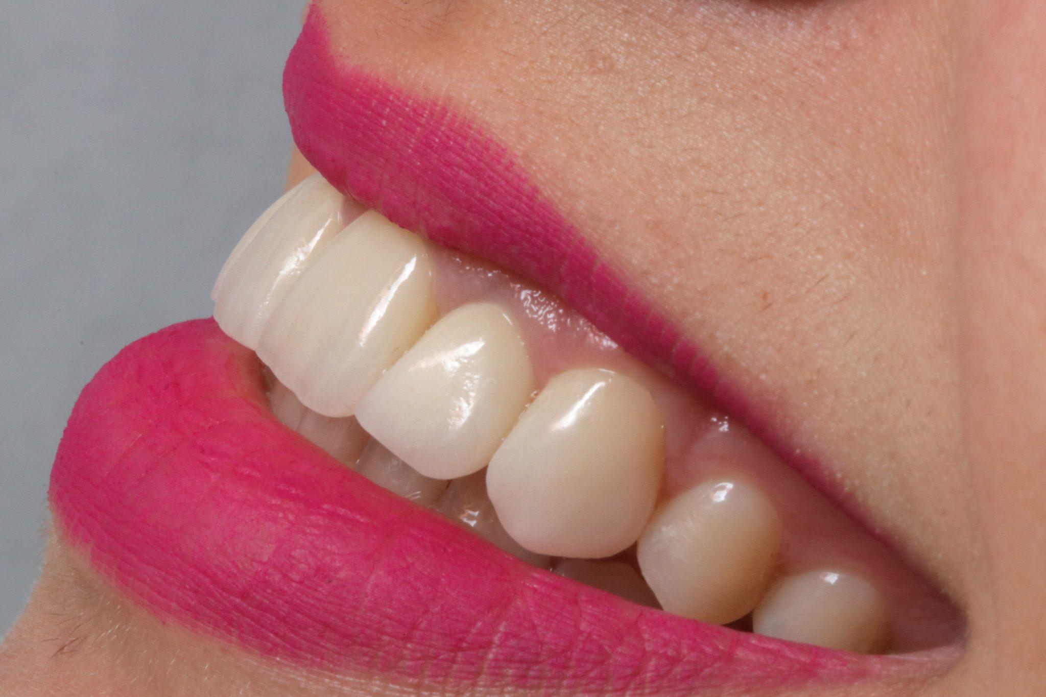 Lente-de-contato-dental-instituto-kopp
