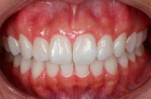 clareamento-dental-instituto-kopp