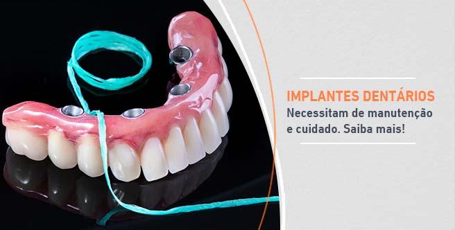 Implantes manutencao e cuidado